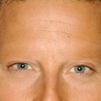 Der Mann ohne Augenbrauen